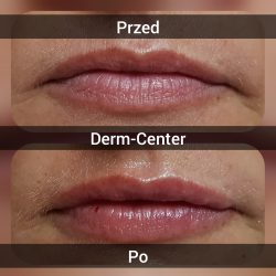 Korekta ust i bruzd nosowo-wargowych-wypełniacze na bazie kwasu hialuronowego